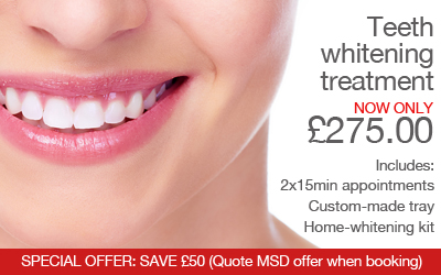 SAVE £50 on our teeth whitening treatment